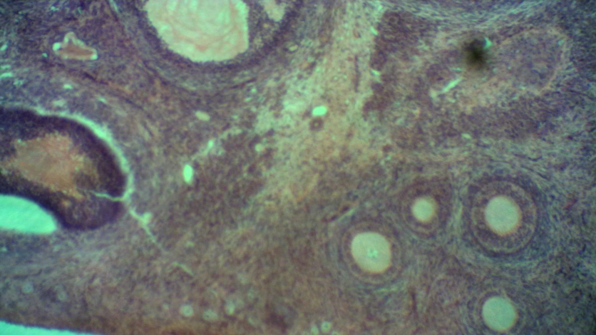 фотография яцеклетки на приближение 4X  в кружке Микробиологии ДЦТ г. Приозерска